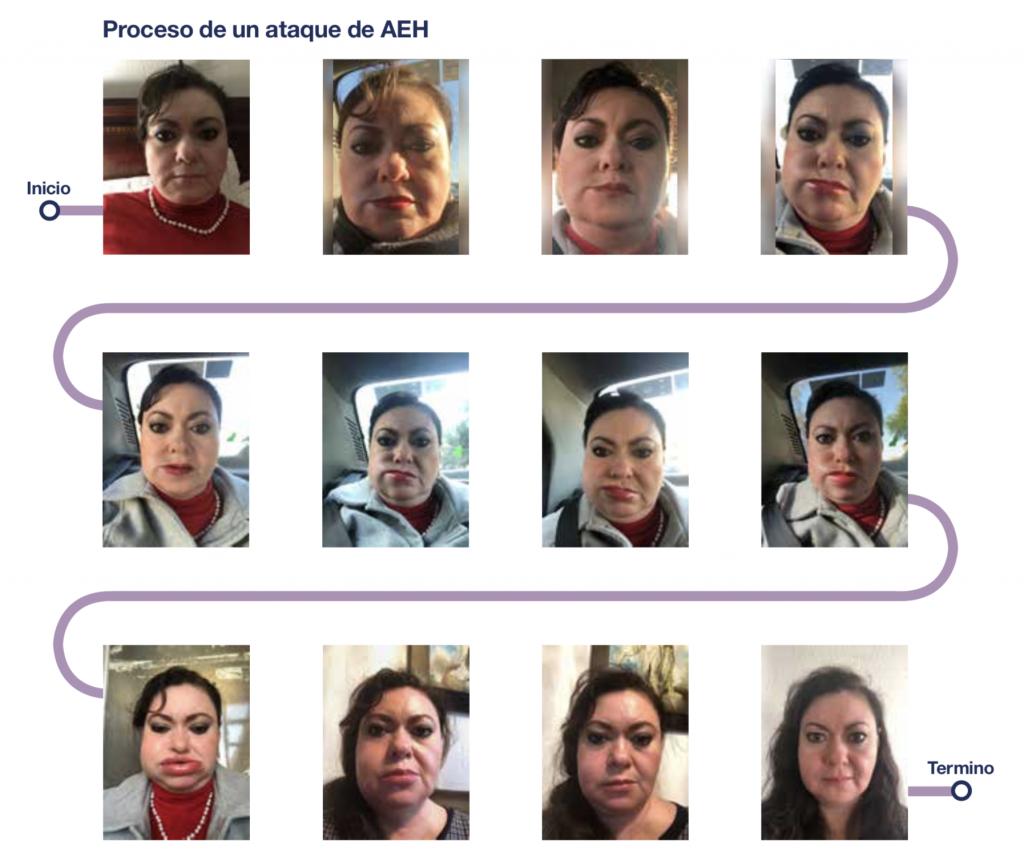 Proceso Angioedema Hereditario